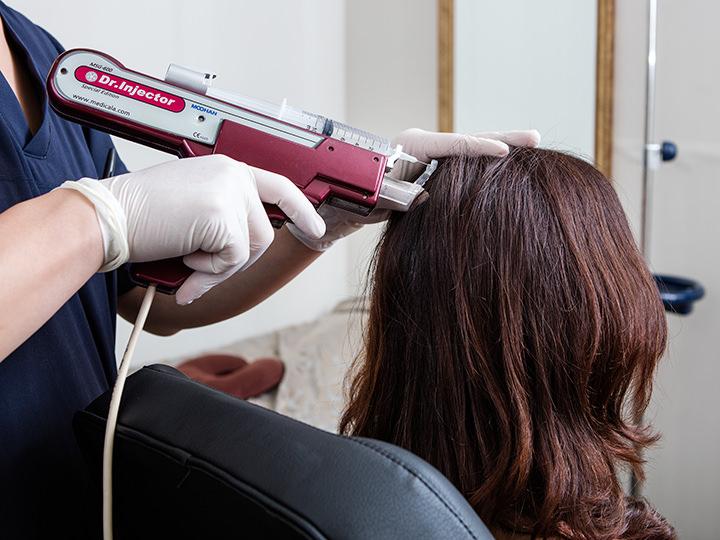 育毛(発毛)剤を頭皮に注入