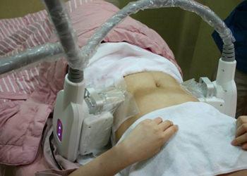 3.施術施術中は皮膚が引っ張られる感覚がありますが、すぐになくなります(※個人差があります)。