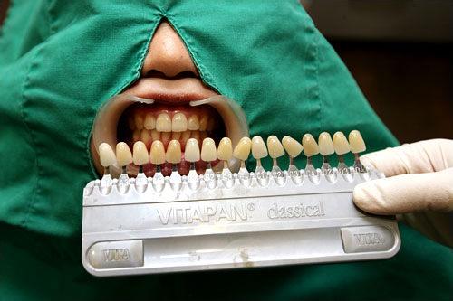 2.現在の歯の色確認チップを使い、現在の歯の色や変色のレベルを確認します。