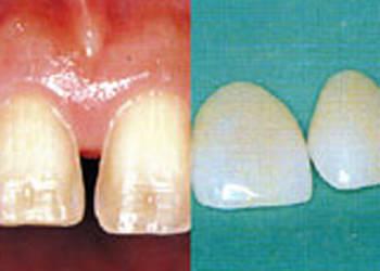 4.歯面切削