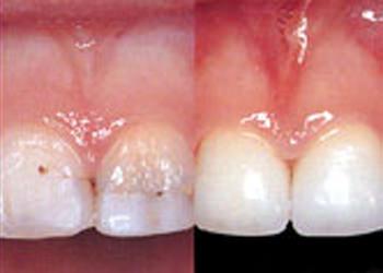 6.仮歯接着