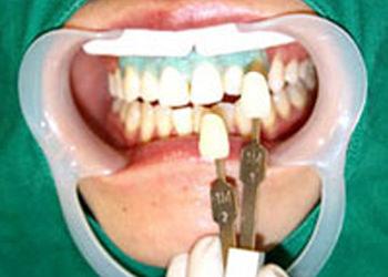 6.色の測定ジェルをふき取り、歯の色の確認と写真撮影を行ないます。