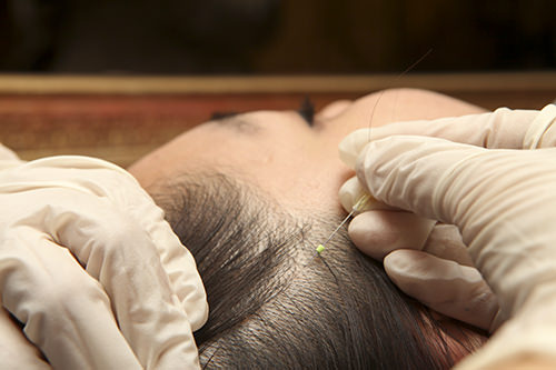 頭皮特殊鍼頭皮の固まった筋肉をほぐし、血液循環を促して毛根を強化します。