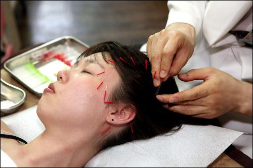 耳の後ろから目の周り、頭まで鍼を打ち、肌全体をリフトアップ