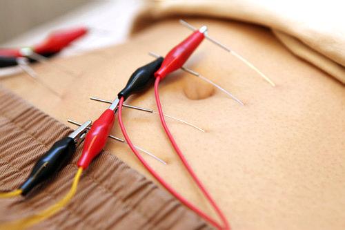 2.電流で鍼の効き目を促進