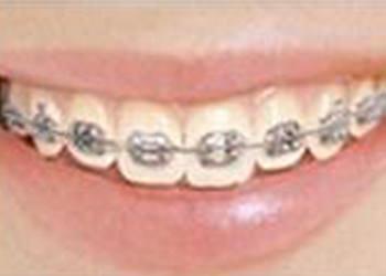 メタルブラケット最もポピュラーな矯正装置。見た目は目立つが、歯が動きやすい。