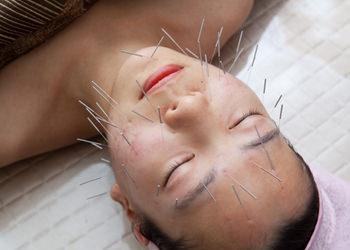明るくハリのある美肌に導く童顔鍼